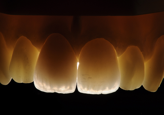 Tooth Implant | Teeth Braces | Dental Implant Singapore | Braces