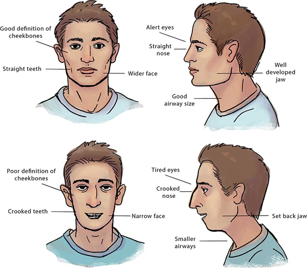 The Harmful Effects of Mouth Breathing