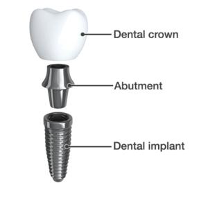 dental-view