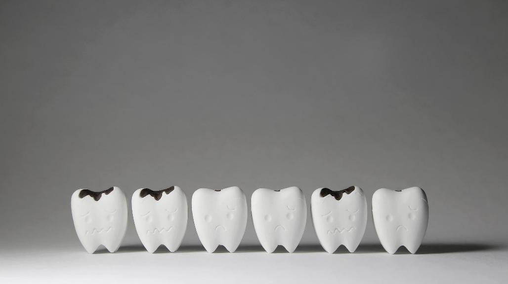 5 common myths about gum disease