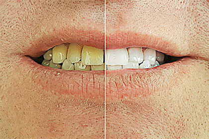 What-affects-the-colouration-of-our-teeth