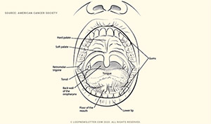 What-is-Oral-Cancer